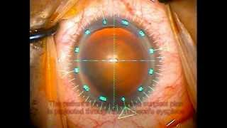 The Verion Image Guided System in Cataract Surgery