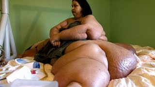 getlinkyoutube.com-Как можно похудеть на 408 килограммов и кардинально изменить жизнь