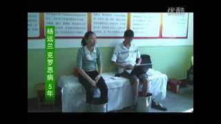 getlinkyoutube.com-Crohn's patient Yang Yuanlan