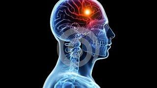 getlinkyoutube.com-Dua for Severe Headache By Assim Al Hakeem