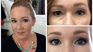 getlinkyoutube.com-Juvederm Filler for Under Eyes w/Before & After Pictures
