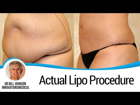 Abdomen Liposuction - Smartlipo And Tickle Lipo - Breast Fat