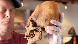 getlinkyoutube.com-Non-Human DNA Found in Elongated Paracas Skulls