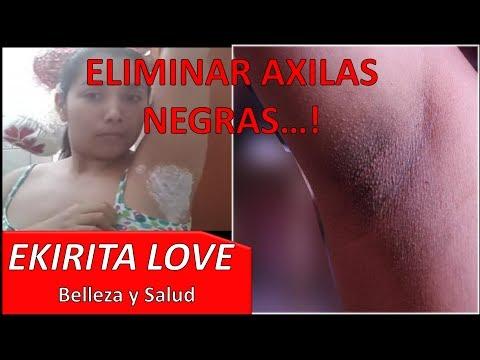 ACLARAR AXILAS NEGRAS CON CARBONATO DE MAGNESIO - Ekirita Love