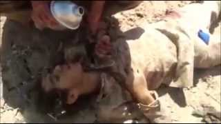Wounded ISIS militant kisses hand of a Peshmerga and asks for water- English Subs