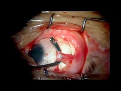 Retinopexia Convencional Oftalmología Cirugía de Ojo Tu Universidad Virtual
