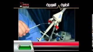 getlinkyoutube.com-لقاء الدكتور يوسف زيتون فتح أنابيب الرحم الجزء الثاني