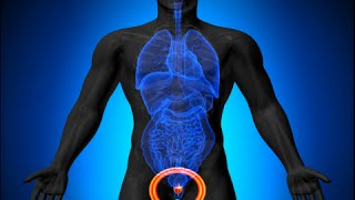 How to Treat an Enlarged Prostate Naturally