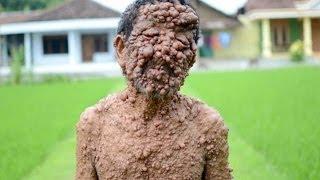 getlinkyoutube.com-Man Has Hundred Of Tumours All Over His Body