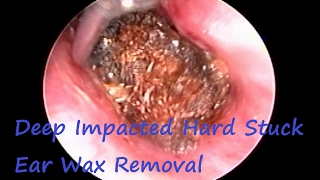 getlinkyoutube.com-Deep Impacted Hard Stuck Ear Wax Removal : Most Irritating Earwax for Patient