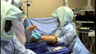 getlinkyoutube.com-Total Hip Replacement Surgery