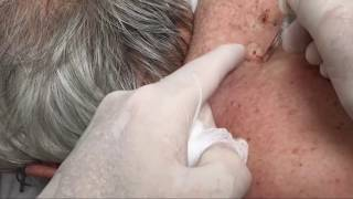 getlinkyoutube.com-Dozens of Giant Blackheads Popped by Dr. Cyst Buster (Educational)