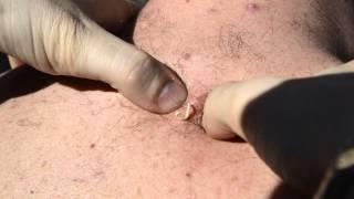 getlinkyoutube.com-Blackhead popping Punto Negro Comedone extraction biggest, gigante