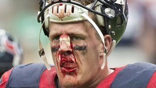 The 9 Most Iconic Sports Injuries of All Time