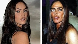 getlinkyoutube.com-17 Worst Celebrity Plastic Surgeries