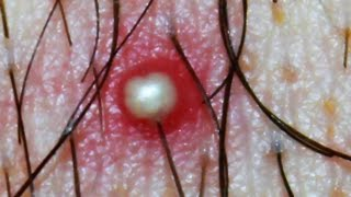 Whitehead or Ingrown Hair?   What is this? Dr Popper's Pimples, Cysts, Boils