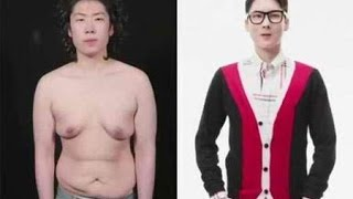 getlinkyoutube.com-Korean Guy Transforms Into a Handsome Man Through Plastic Surgery