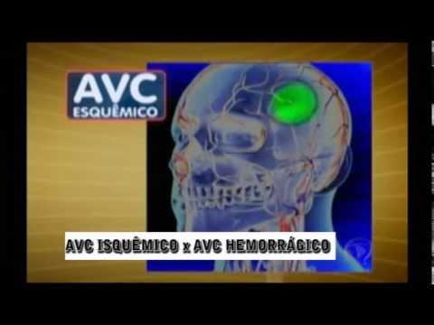 AVC Isquêmico x AVC hemorrágico - Dr Andre Felicio - Rede Record