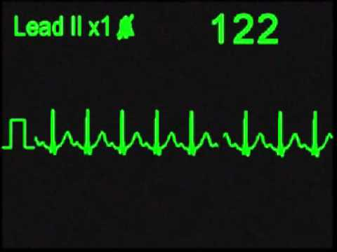 Sinus Tachycardia - ECG Simulator - Arrhythmia Simulator
