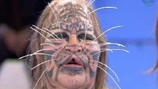 getlinkyoutube.com-ابشع عمليات التجميل فى العالم - مشاهد غير مناسبة للأطفال +18