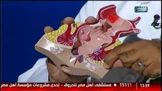 getlinkyoutube.com-#القاهرة_والناس | أمراض الشرج وطرق العلاج مع دكتور رضا سعد عز فى #الدكتور