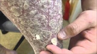 getlinkyoutube.com-Frosted Skin Flakes - [Psoriasis, Peel, Scrape]