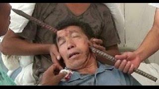 getlinkyoutube.com-Barra de hierro le atraviesa la cabeza y vive de milagro
