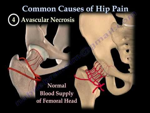 HIP PAIN ,COMMON CAUSES- Everything You Need To Know - Dr. Nabil Ebraheim