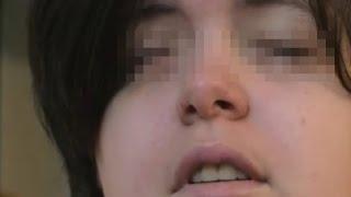 getlinkyoutube.com-【閲覧注意】長年の夢は失明…自ら目を潰した自傷行為がヤバイ【奇病】