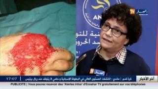 getlinkyoutube.com-صور مرعبة لضحايا المفرقعات تنشرها قناة النهار .. احذروا !!