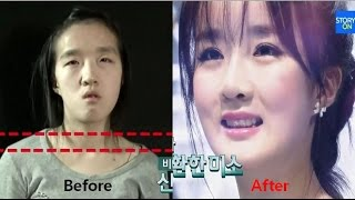 getlinkyoutube.com-LET ME IN 5 Mommy make over to a doll (Korean Plastic Surgery Before & After, Jaw Surgery)