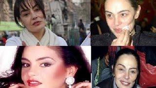 شاهد التشوه الكبيرالذي تركه مرض السرطان في خذ النجمة شيريهان رغم قيامها بعمليات التجميل
