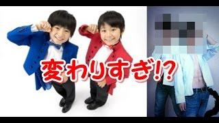 getlinkyoutube.com-【驚愕】芸能人子役のビフォーアフター【変わりすぎ!?】