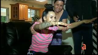 getlinkyoutube.com-Linda Pérez la joven cubana afectada por cirugía estética recibe agradable sorpresa