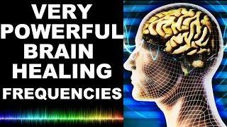 getlinkyoutube.com-WARNING !! MOST POWERFUL BRAIN HEALING FREQUENCIES: BINAURAL BEATS, OM, DRONE, BELLS : MUST TRY !