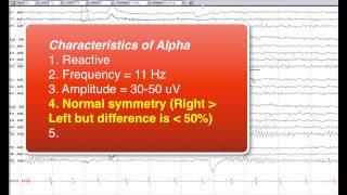 getlinkyoutube.com-6   Normal Awake EEG