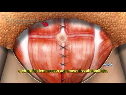 Abdominoplastia: Cirurgia Plástica Abdominal - Recife e Caruaru | Murilo Vasconcellos