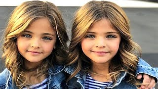 5-MOST-UNUSUAL-AND-BEAUTIFUL-KIDS-IN-THE-WORLD width=