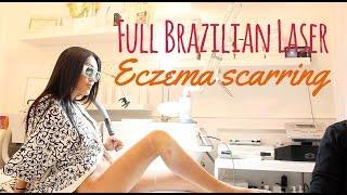 getlinkyoutube.com-Brazilian Laser Hair Removal & Eczema Scar Reduction