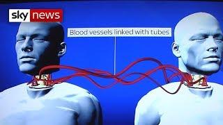 getlinkyoutube.com-World's First Head Transplant: What's Involved?