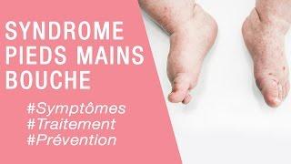 Le syndrome pieds mains bouche - Maladies infantiles
