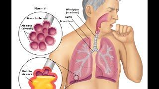 getlinkyoutube.com-Bacterial Pneumonia: Symptoms & Treatment