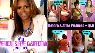getlinkyoutube.com-Gastric Sleeve Post Op Before & After Pictures + Q&A