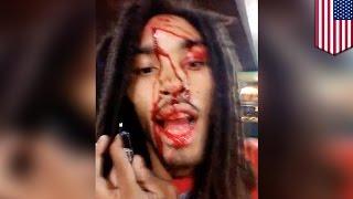 getlinkyoutube.com-Rapper natamaan ng bala sa ulo, nagselfie video muna bago ospital — TomoNews