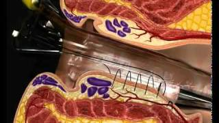 getlinkyoutube.com-best hemorrhoid treatment | New Treatment for Hemorrhoids