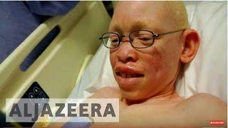 getlinkyoutube.com-Spell of the Albino - REWIND