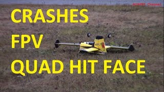 getlinkyoutube.com-Crash - FPV crash - Aeroworks Carbon Cub maiden - Quad hit face - Real RC fun