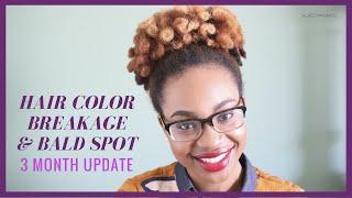 getlinkyoutube.com-Natural Hair Color Breakage & Bald Spot - 3 Month Update | Klassy Kinks