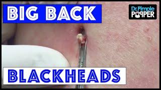getlinkyoutube.com-Big. Back. Blackheads