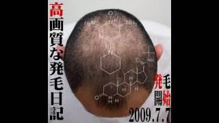getlinkyoutube.com-わずか3ヶ月で髪の毛が生えた~高画質な発毛日記~